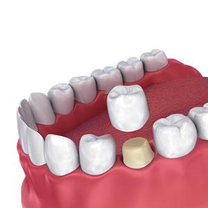 Diş Zirkonyum Kaplama