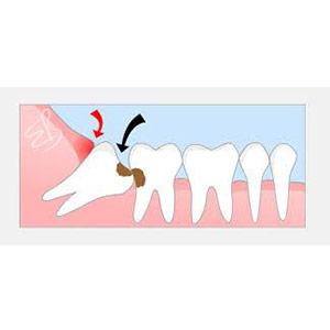 Gömülü Diş Ağrısı (20lik Ağrısı) Nasıl Olur?