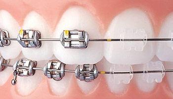 Klasik Metal Braket Sistemleri ile Ortodontik Tedavi