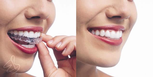 Şeffaf Plaklar ile Ortodontik Tedavi